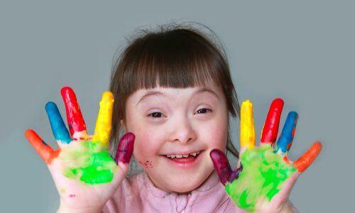 Những điều cần biết về Hội chứng Down